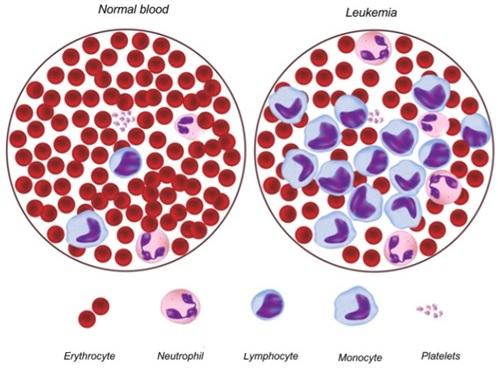 anemia x leucemia papilloma az orrban