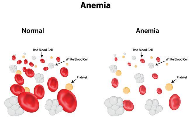 anemic