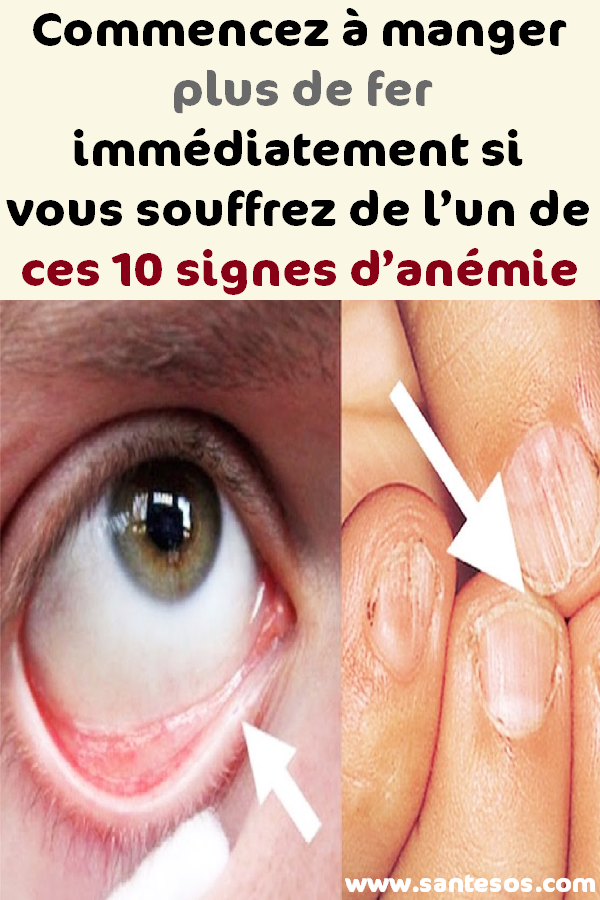anemie yeux rectal cancer is pain