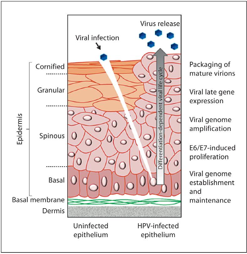 papilloma virus warzen