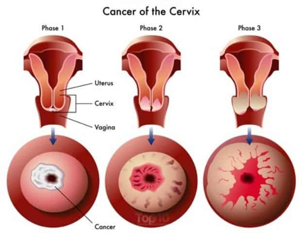 stage one hpv cervical cancer oxiori la copii