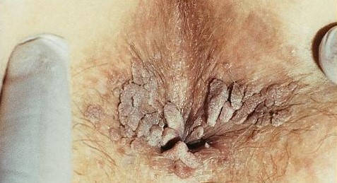 vindecare papiloma virus