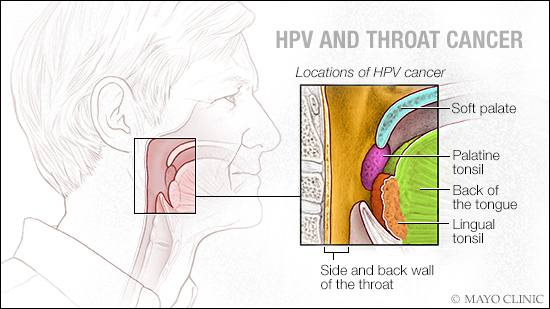 risk of throat cancer with hpv