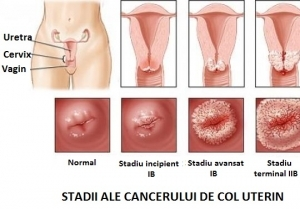 cancer uterin simptome
