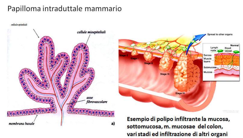 papillomavirus humain et vih