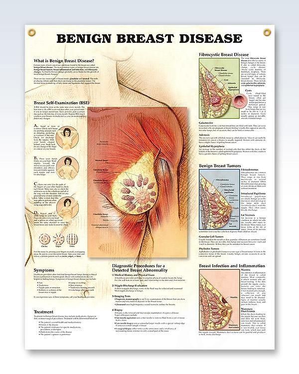 breast cancer benign tumor benign tonsil papilloma