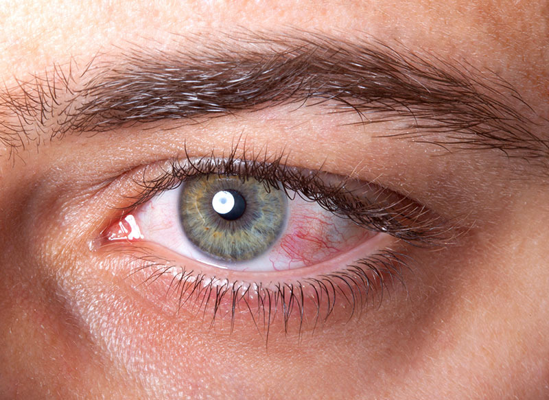 ochii de orbiți în varicoză)