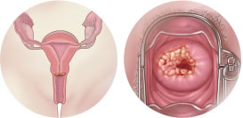 endometrial cancer treatment stage 1
