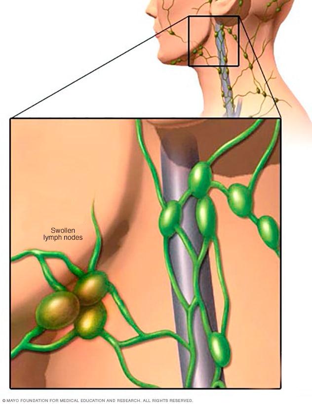 cancer hodgkin sintomas