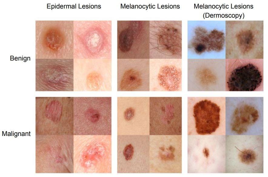 cancer piele benign