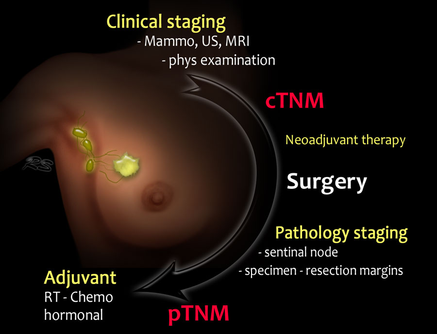 benign cancer stages cel mai dezvoltat vierme