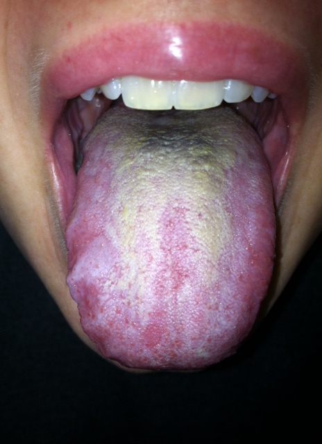 hpv cancer tongue picture