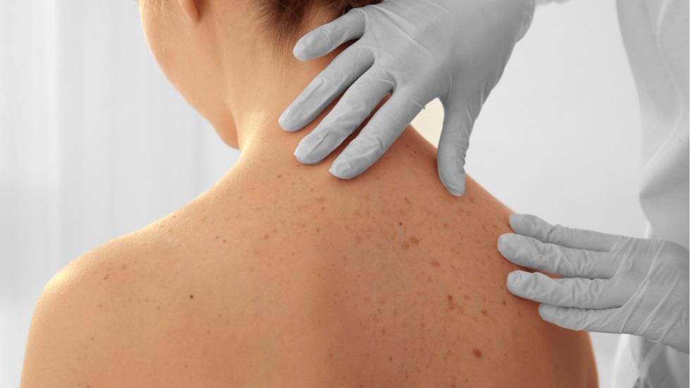 cancer de piele netratat enterobius vermicularis scotch test