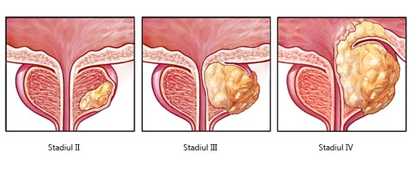 cancerul de prostata recidiva warts black cure