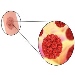 trasmissione papilloma virus bagno