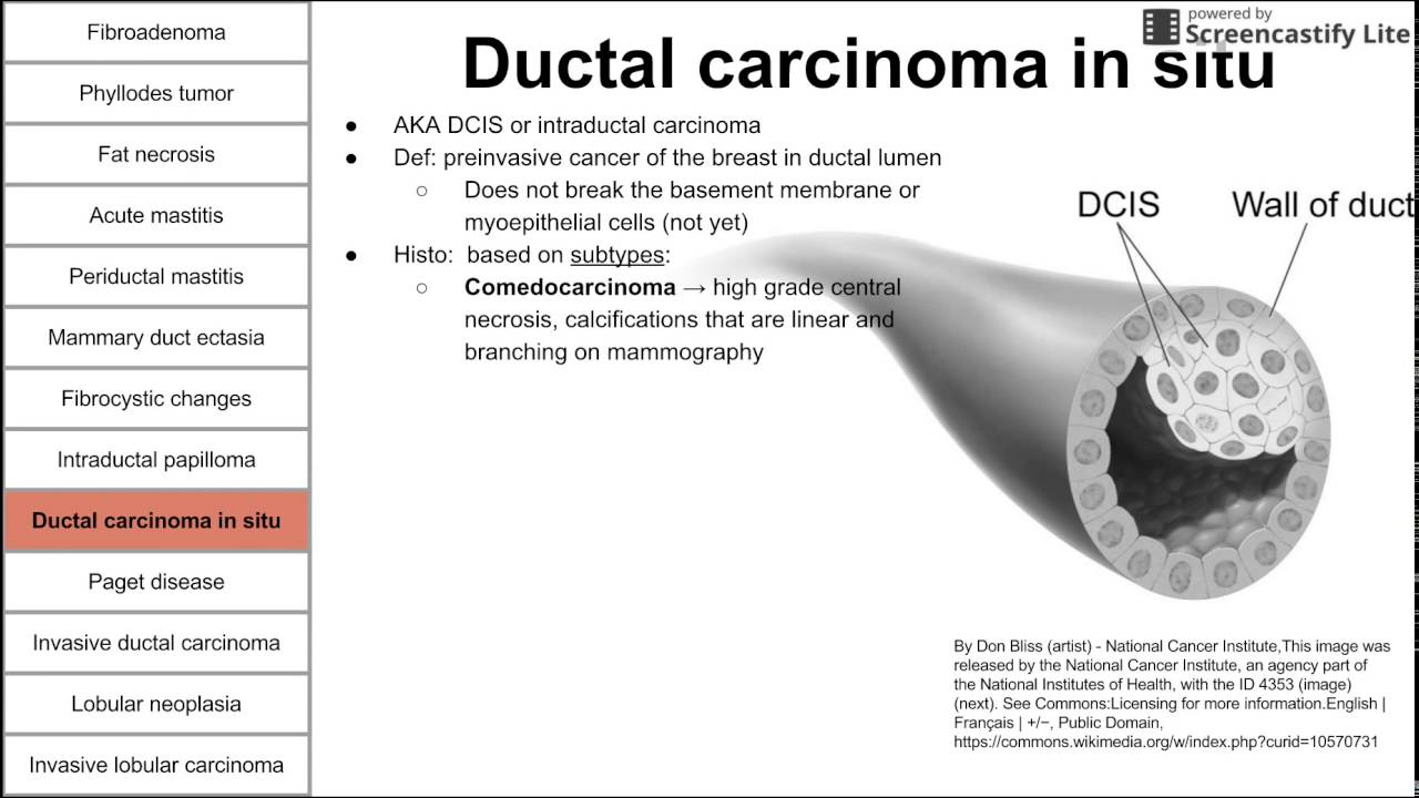 papillomas of breast cancer