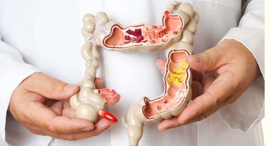 cancer san campanie cancer vezica urinara stadiul 2