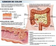 cancer de colon a