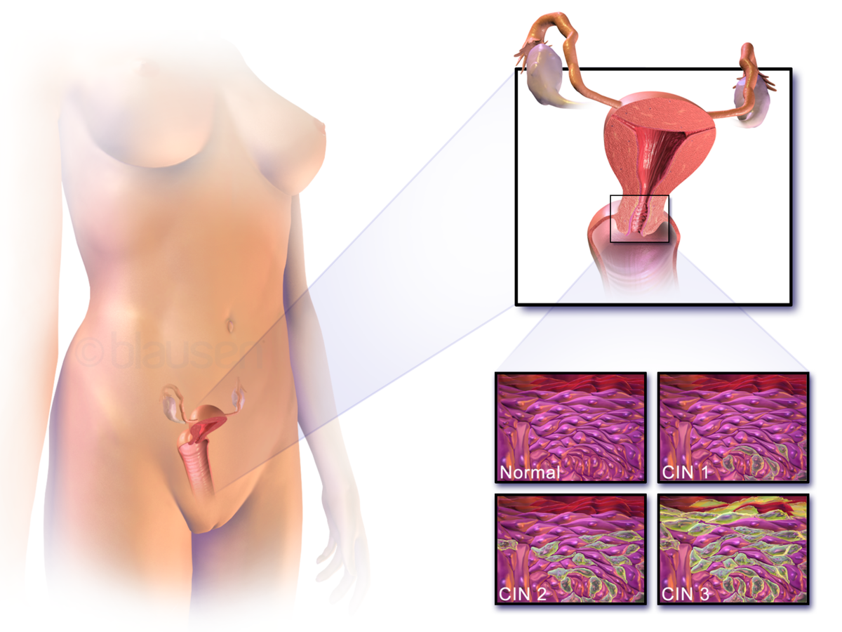 hpv and herpes during pregnancy hpv causes pcos