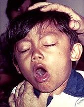 keuchhusten toxine