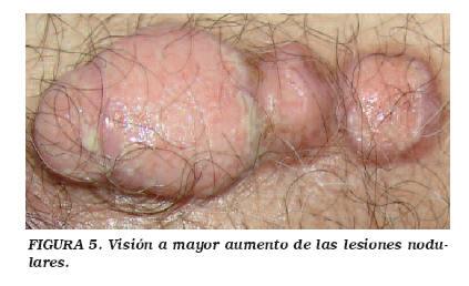 cancer a la uretra