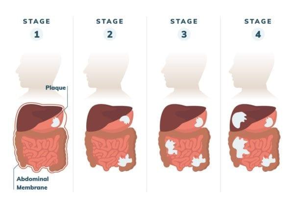 cancer abdominal mesothelioma
