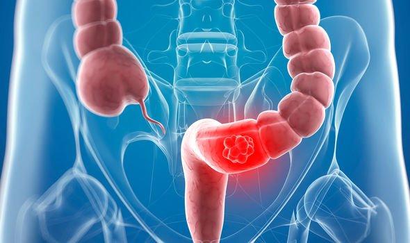 cancer abdominal pain colon helminth infection pregnant