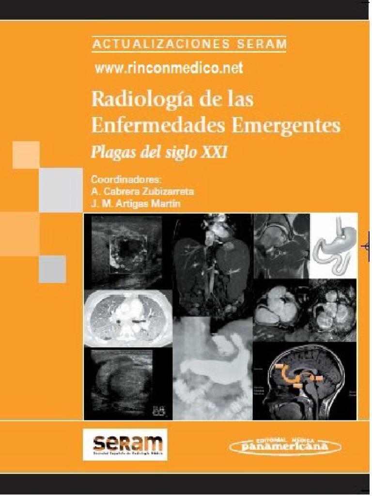 cancer de pancreas pronostico de vida human papillomavirus (hpv) adalah