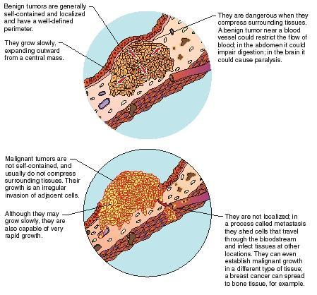 cancer benign versus malignant enterobius vermicularis definition