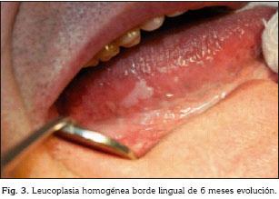 cancer bucal edad