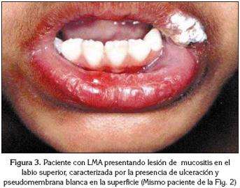 Capital Social y Caries Dental: Roberto León-Manco · | Books Express