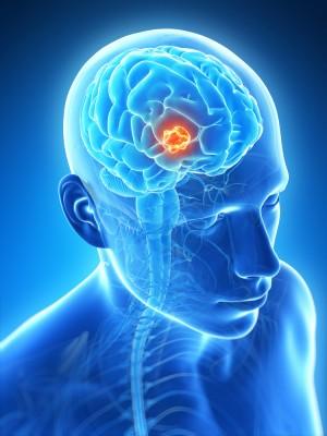 cancer cerebral infantil
