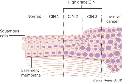 cancer cervical cells
