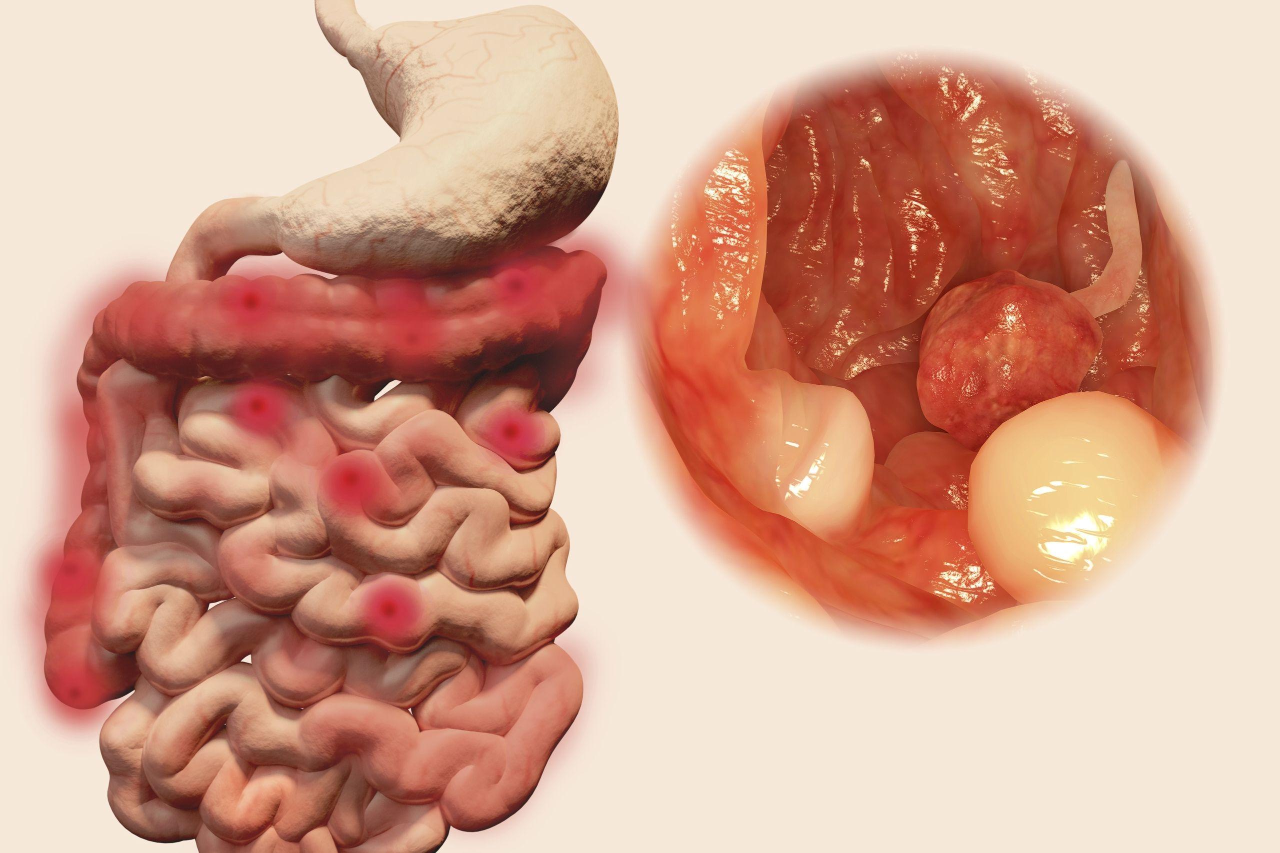 cancer colon droit pronostic human papillomavirus infection dysplasia
