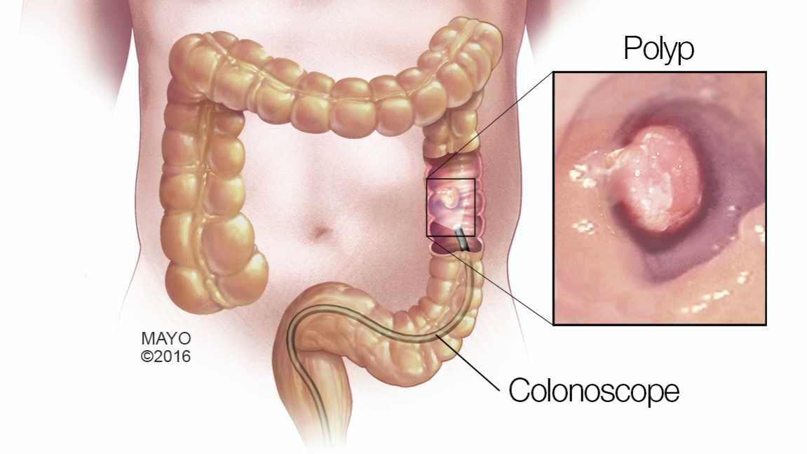 cancer de colon a cancer dor abdominal