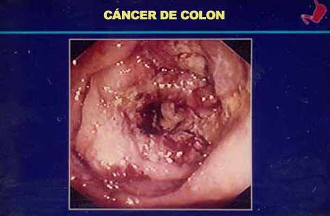 cancer de colon benigno o maligno helmintox 250