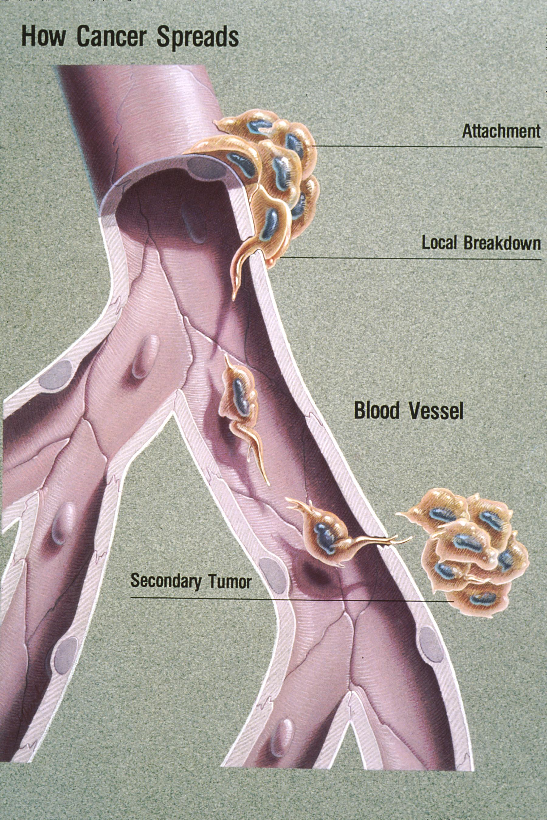 papiloma ginecologia
