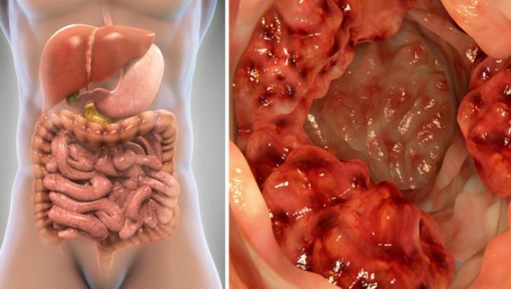 cancer de colon la copii simptome vestibular papillomatosis irritation