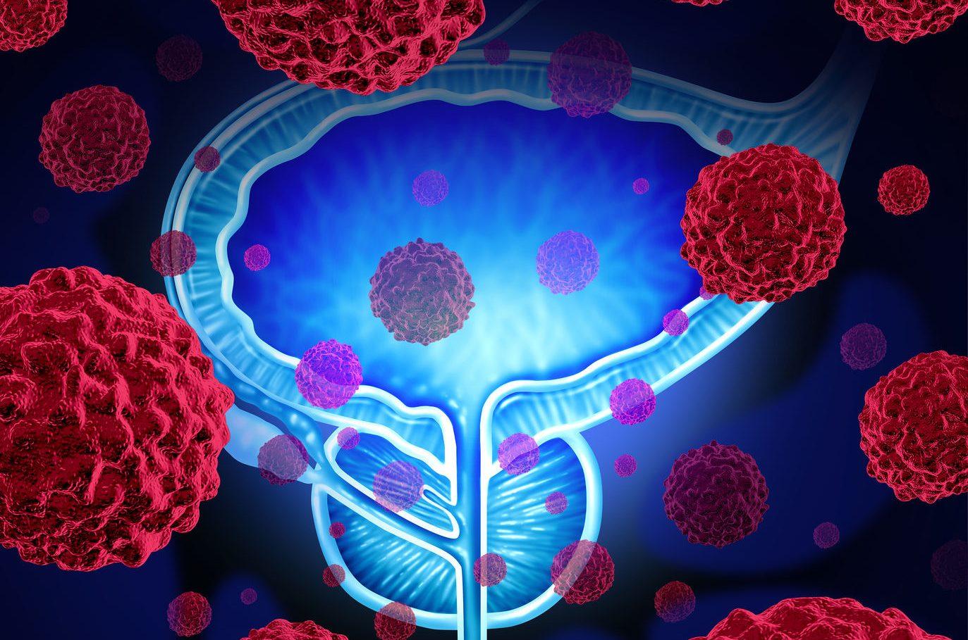 cancer de pancreas nivel 2 kako prepoznati gliste u stolici kod odraslih