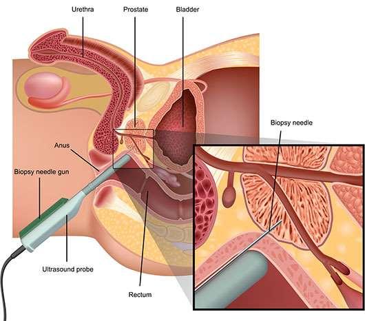 cancer de prostata biopsia papiloma verruga genital