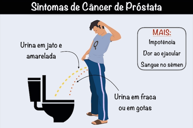 cancer colon sintomas oxiurose agente causador sintomas e tratamento