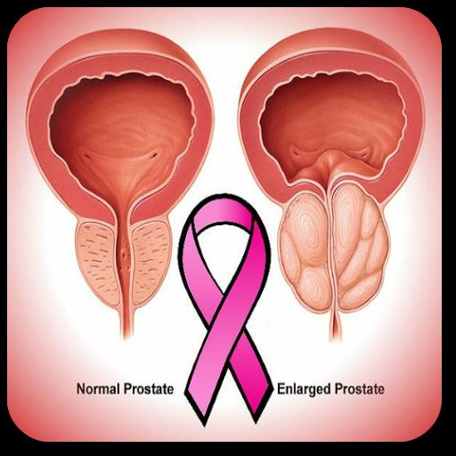 cancer de prostata stadii papillary thyroid cancer spread to lymph nodes prognosis
