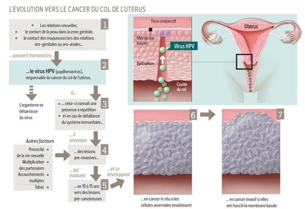 cancer du col et virus hpv
