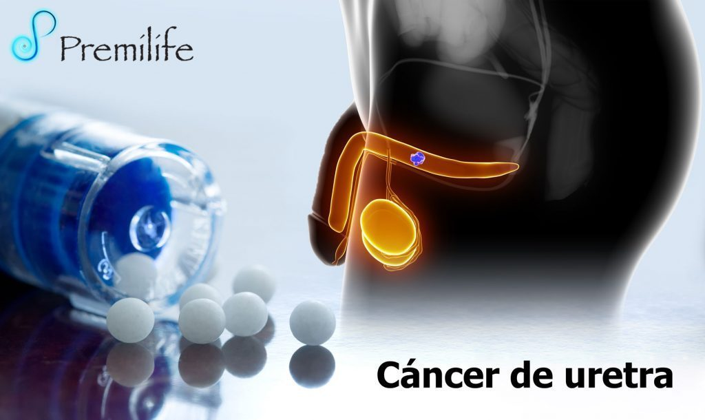enterobius vermicularis research renal cancer symptoms