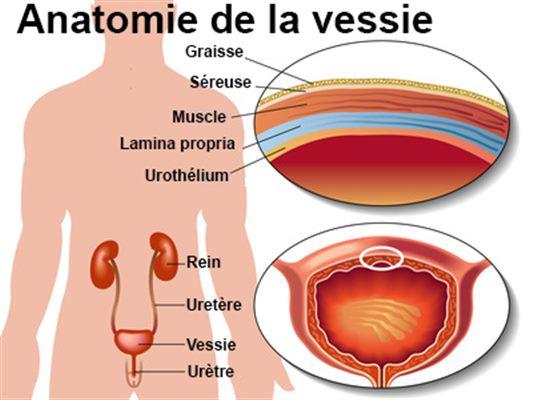 Cancer feminin ou masculin - Uterine cancer early stage - Cancer intestinul gros polipi