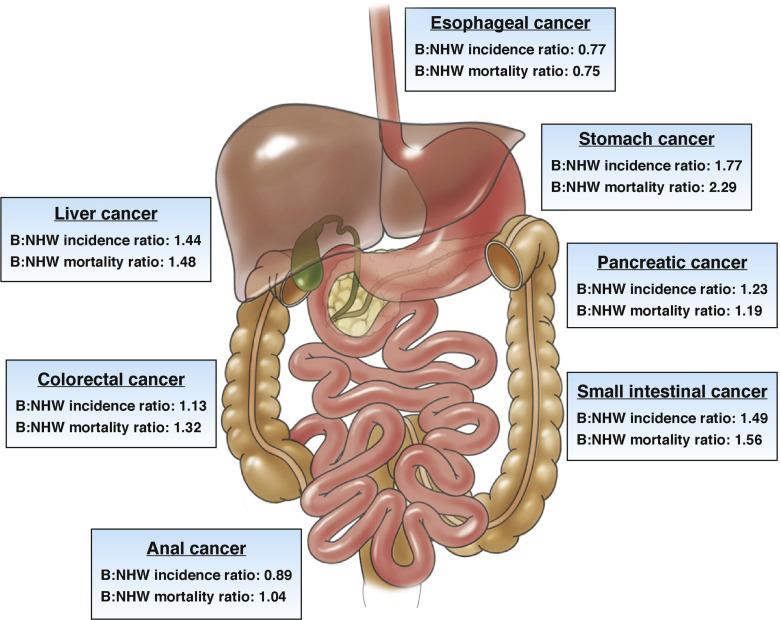 cancer gastrointestinal