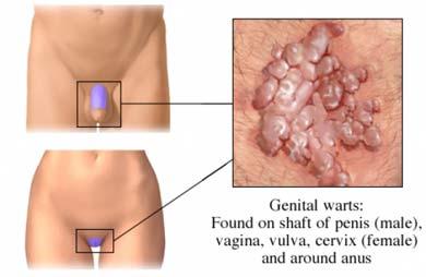 cancer genital femei simptome