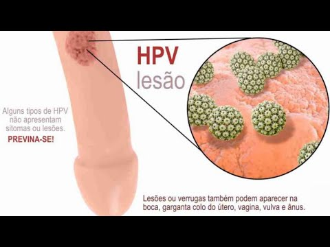 cancer hpv homem sintomas hpv case definition