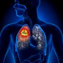 cancer la plamani pareri virus papiloma humano treatment