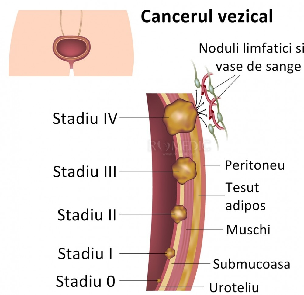 cancer ovarian stadiul 1 colorectal cancer keytruda